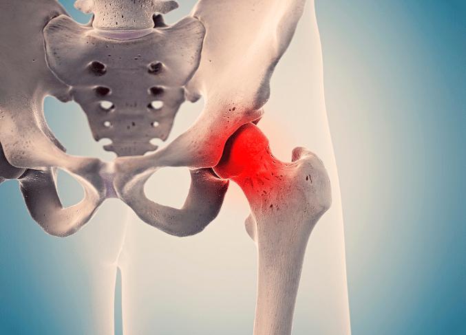 FAI (femoroacetabular impingement) o conflitto femoro-acetabolare