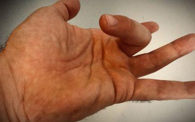 Dito a scatto – cause, sintomi e trattamento