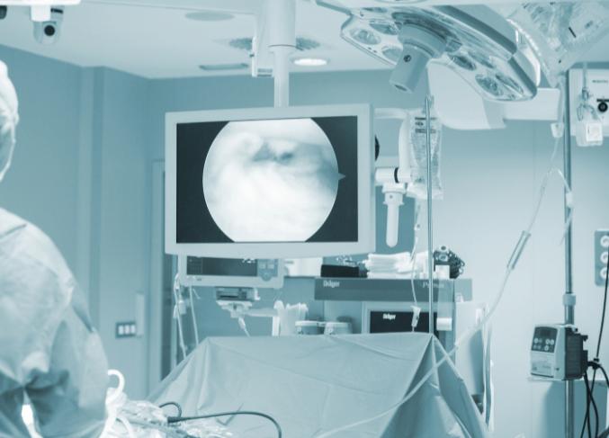 Lesione del menisco – quando la chirurgia NON è necessaria