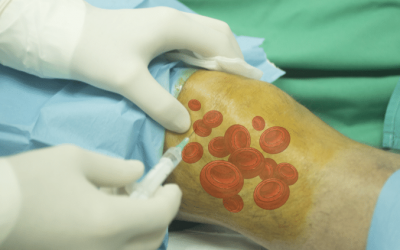 Plasma ricco di piastrine (PRP)e ginocchio…a che punto siamo?